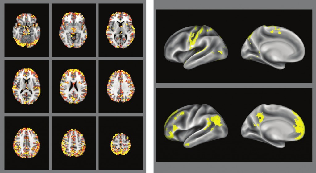 "Results from BIGQUIC analyses of resting-state fMRI data. Left panel: Map of degree distribution across voxels, thresholded at degree=20. Regions showing high degree were generally found in the gray matter (as expected for truly connected functional regions), with very few high-degree voxels found in the white matter. Right panel: Left-hemisphere surface renderings of two network modules obtained through graph clustering. Top panel shows a sensorimotor network, bottom panel shows medial prefrontal, posterior cingulate, and lateral temporoparietal regions characteristic of the ""default mode"" generally observed during the resting state. Both of these are commonly observed in analyses of resting state fMRI data."
